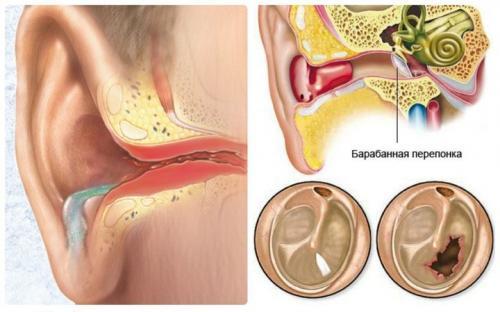 Борная кислота в ухо применение взрослым при беременности. Применение кислоты при лечении ушей